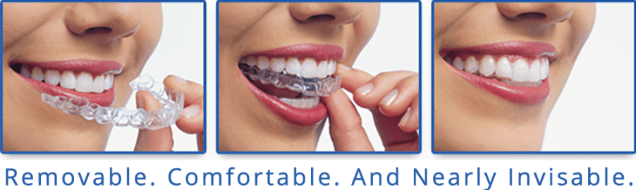 Invisalign Clear Braces, Sherwood Heights Dentist